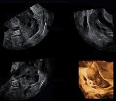 Riesgo de embarazo ectópico tras fecundación in vitro (FIV)