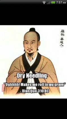 Acupuncture vs dry-needling