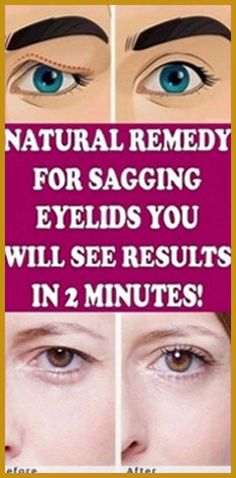 Natural Remedy for Sagging Eyelids You Will See Results In 2 Minutes! - Natural Remedy for Sagging Eyelids You Will See Results In 2 Minutes! Natural Medicine, Herbal Medicine, Ayurveda, Health And Nutrition, Health And Wellness, Health Facts, Health Care, Gut Health, Wellness Tips