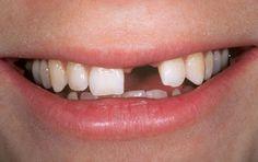 Nhiều người bị khuyết điểm mất răng do tai nạn hoặc chấn thương làm ảnh hưởng lớn đến tính thẩm mỹ cũng như khả năng ăn nhai.