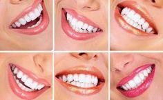 Η ΛΙΣΤΑ ΜΟΥ: Οι 4 ασθένειες που φαίνονται στα δόντια μας (βίντε...