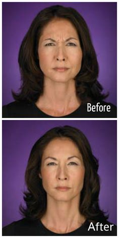 BOTOX® is a purified biological protein that is approved by the FDA for the treatment of frown lines between the brows. http://derm90210.com/Botox