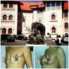 mammary prothesis People with cancer may need prostheses for the breasts, legs,  are available for  women who have had just part of a breast removed.