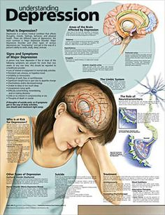 Understanding depression: What is depression? Who is at risk for depression? Areas of the brain Affected by depression; Signs and Symptoms of Major Depression; Types of depression; What Is Depression, Depression Facts, Depression Remedies, Depression Symptoms, Managing Depression, Explaining Depression, Depression Awareness, Psychology Facts, Mental Health