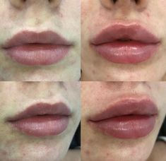 Check out our lip injection gallery! Dermal filler is made from Hylauronic Acid which is a substance found naturally in the body, it is responsible for attracting and retaining moisture giving a plump, juicy, & hydrated appearance! Dermal Fillers Lips, Face Fillers, Botox Fillers, Natural Lip Plumper, Natural Lips, Lip Implants, Hyaluron Filler, Facial Aesthetics, Lip Shapes