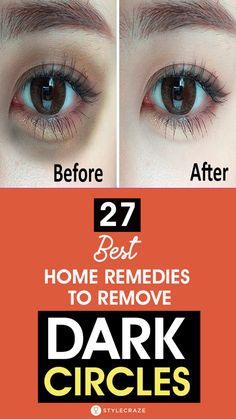 If you too are one of the many individuals tormented by dark circles worry not Home Remedy Teeth Whitening Beauty Hacks Lips, Beauty Hacks Eyelashes, Dark Beauty, Beauty Skin, Natural Beauty, Home Remedy Teeth Whitening, Beauty Hacks That Actually Work, Dark Circle Remedies, Dark Circles Under Eyes