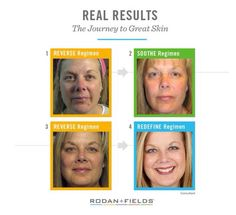 The results are real!  Check out this transformation!  Start your skin story!! Love your skin!