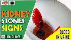 8 Kidney Stone Signs and Symptoms Signs Of Kidney Stones, Signs And Symptoms, Health Advice, Youtube, Youtubers, Youtube Movies