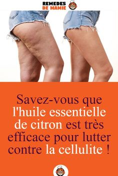 Cellulite Exercises, Cellulite Remedies, Diy Beauty, Beauty Skin, Health And Beauty, Peau D'orange, Lose Cellulite, Gewichtsverlust Motivation, Yoga Everyday