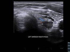 parathyroid adenoma ultrasound에 대한 이미지 검색결과