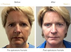 A #faceliftsurgery is defined as correcting the aging process from the level of the eyes down to the collarbone.