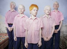 First Prize - A group of young blind albino children in one of the few schools for the visually impaired in the country, State of West Bengal (India), September 25, 2013. BRENT STIRTON / GETTY IMAGES