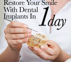 Restore Your Smile with Dental Implants in One Day
