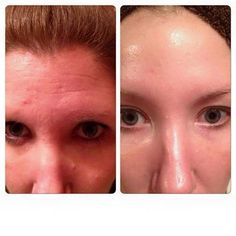 4 Months of Redefine and AMP MD Roller from Rodan+Fields. https://knprice.myrandf.com. ask me about 10% off and free shipping.