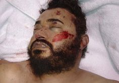 Death of Abu Musab al-Zarqawi, leader of Al-Qaeda in Iraq, who terrorized Shiite followers of Islam in Iraq Islamic People, Post Mortem Pictures, Post Mortem Photography, Al Qaeda, Iraq War, Memento Mori, World War, History, World History