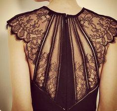 Gorgeous lace