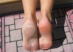 Inspirerend   Voetenbad vol met water en zout toevoegen en zout laten oplossen daarna je voeten 30 minuten laten weken. Door ilsehamer