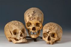 skulls from victims of syphilis