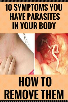 10 Symptoms You Have Parasites In Your Body And How To Remove Them #10SymptomsYouHaveParasitesInYourBodyAndHowToRemoveThem
