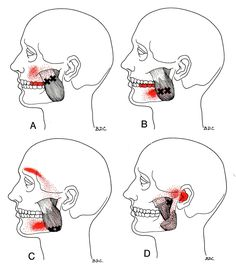 Masseter | The Trigger Point & Referred Pain Guide