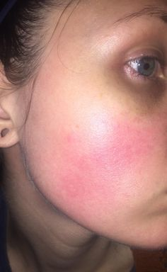 [Skin Concerns] very red and dry skin. Using retin a micro gel for one year and redness not going away
