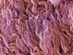 skin cells under microscope - google search | skin | pinterest, Muscles