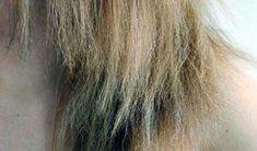 NavegaçãoComotratar em casaIngredientesalternativosDeterminandoa quantidade da misturaAprendacomo usar o tratamentoSe seus cabelos estão quebrados e porosos com certeza você deve estar bem insatisfeita e louca para tentar resolver esses probleminhas. Muitas mulheres estão à procura de soluções que reduzam a porosidade e suavize esse efeito nos fios. O cabelo poroso é aquele que apresenta as cutículas …