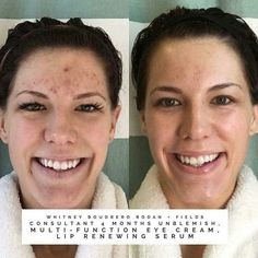 Check out Whitney's 4 months results below...confidence restored!! Want products that give you noticeable results? My shelves are stocked with the #1 premium skincare brand! Invest in YOUR skin, you'll be glad you did ❤  ksnodgrass1.myrandf.com