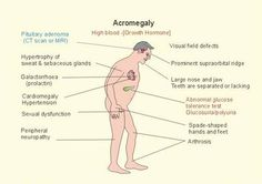 Acromegaly disease is a common effect of excessive growth hormone (HGH) levels. Growth hormones are produced by the pituitary gland. Irregularity in this gland may result to overproduction of growth hormones which then leads to Acromegaly. It is often found in twenty-something individuals but the symptoms may occur at any point in life. #acromegaly  #bonediseases #medicalook