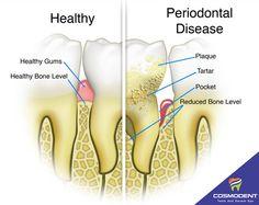 Cosmodent #healthy_Gums #Healthy_Bone_Level #Periodontal_disease #Plaque #Tartar #Pocket #Reduced_Bone_level  #dental_clinic #dental_Doctor #dentist