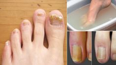 Remove The Fungus From Toenails For Good With Just 2 Ingredients