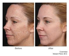 The one and only, Cosmelan for Melasma.. can't be beat!