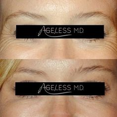 Diminished crows feet with B O T O X 💉✨ Call now to take advantage of our Botox ...