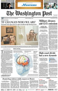 Traumatic brain injury--combat