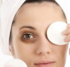 Here's how you can get rid of them… Dark circles or dark rings are an apparent darkening of the skin around the eyes resulting from visible veins through the thin periorbital skin. According to med...