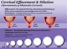 cervical effacement and dilation during labor