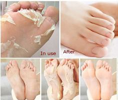 foot dry skin remover