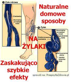 PrzepisyNaZdrowie.pl-domowe-sposoby-na-zylaki-zaskakujace-efekty