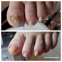 Nails foot ,pedicure Foot Pedicure, Toenails, Fungi, Mushrooms, Toe Nails, Feet Nails, Pedicures