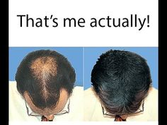 Hair Loss Treatment - How To Grow Hair Faster -  How To Stop Hair Loss (... How To Get Long & Thick Hair, Stop Hair Fall & Get Faster Hair Growth In... Provillus Hair Loss Treatment – Are You Looking for REAL Reviews of Provillus? READ NOW http://www.easybodyfit.com/provillus/
