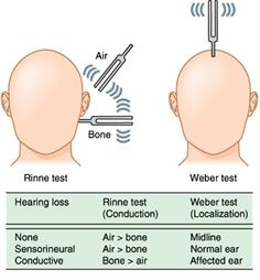 A normal test is when the patient can hear the tuning fork easier when held 1 cm from the EAC rather than when placed on the bone