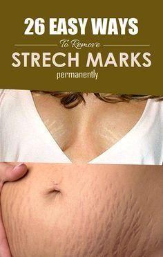 e25831dcca0e1658b4048c92d292be6a - How To Get Rid Of Stretch Marks Under Armpits