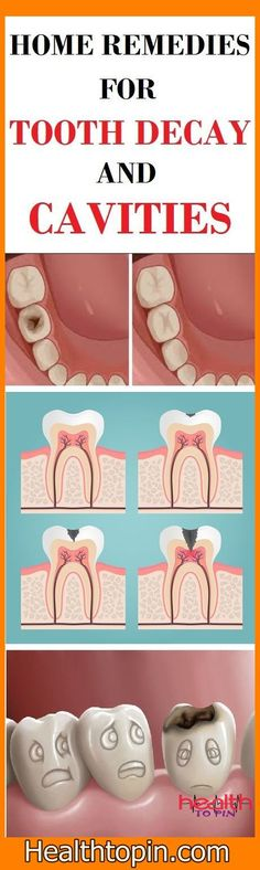 HOME REMEDIES FOR TOOTH DECAY AND CAVITIES #cavities #tooth #decay #health