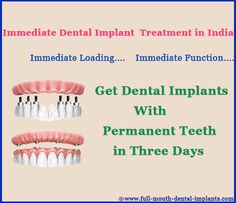 #Immediate Implant Placement can be done in #3 days Immediate Implant Placement are such a procedure when the tooth is removed and at the Same Day Dental Implants are placed. This procedure is considered as a standard way of preventing any changes in shape of bone and gum near the extracted tooth. In one intervention whole surgical treatment could be completed. http://full-mouth-dental-implants.com/immediate-implant-placement.php