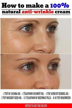 Learn how to make a 100% natural anti-wrinkle cream. #AntiWrinkle #