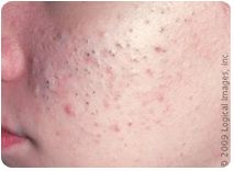 Appearance: Blackheads and Milia exist, generally in greater numbers. Papules and Pustules become more evident in this stage. They will appear with greater frequency, and general breakout activity will be more obvious. Slight inflammation of the skin is now apparent.