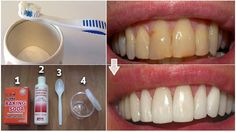This natural baking soda paste you are going to see below will get rid of the pl. - This natural baking soda paste you are going to see below will get rid of the plaque and whiten you - Teeth Whitening Remedies, Natural Teeth Whitening, Homemade Mouthwash, Homemade Toothpaste, Homemade Facials, Gum Disease Treatment, Gum Health, Oral Health, Health Tips