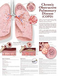 Chronic Obstructive Pulmonary Disease anatomy poster anatomy poster describes COPD, normally associated with emphysema and chronic bronchitis. Pulmonology chart for doctors, nurses and students. Nursing Tips, Nursing Notes, Study Nursing, School Nursing, Cardiac Nursing, Respiratory Therapy, Respiratory System, Asthma, Lung Anatomy