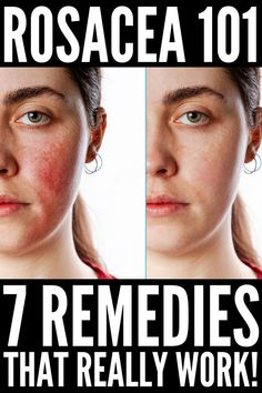 Best Makeup For Rosacea, Rosacea Makeup, Acne Rosacea, Eyebrow Makeup, Face Treatment, Home Remedies For Rosacea, What Causes Rosacea, Beauty, Natural Remedies