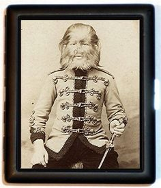 Fedor Jeftichew (1868 - 1904) was a Russian known as 'Jo-Jo The Dog Faced Boy'. He had hypertrichosis, which caused long hair all over his body.  His father also had the condition and they were in the sideshow together.  After his father's death, he became employed by P.T. Barnum.  He customarily wore a Russian soldier's uniform and saber.  At times he acted quiet and dignified and others he barked and growled at the audience.  He died of pneumonia at age 35.
